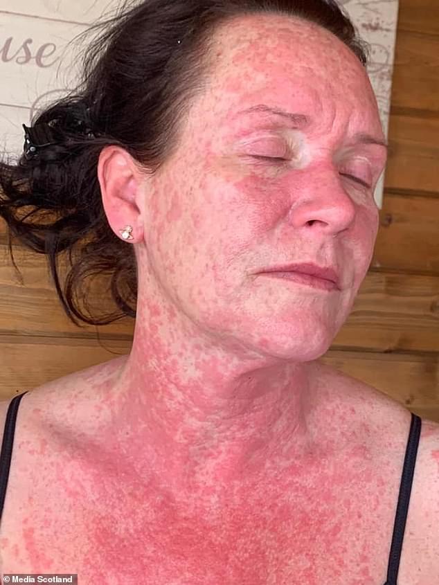 皮膚炎の写真
